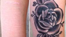 Brian Finn convierte cicatrices por maltrato en hermosos tatuajes gratis