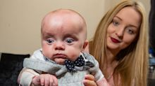 Baby born without skin on almost his entire body defies doctors odds to survive