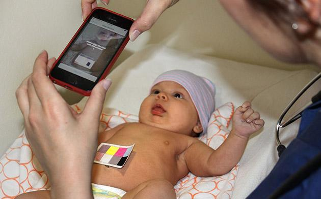 Experimental app can detect jaundice in newborns with just a snapshot