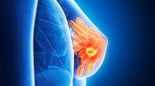 Assumere la pillola contraccettiva non fa aumentare i rischi di cancro al seno