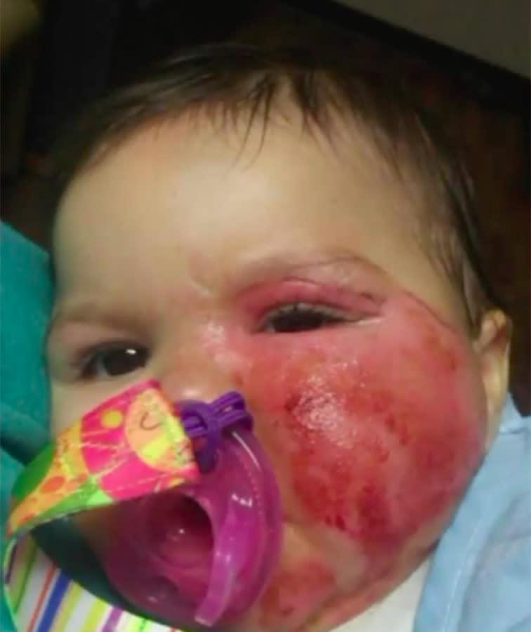 Toddler suffers horrific burns from common household appliance