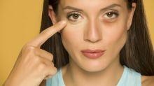 Olheiras: por que marcas naturais do rosto são alvo de comentários?