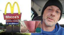 McDonald's customer 'burnt on leg' while in drive-thru