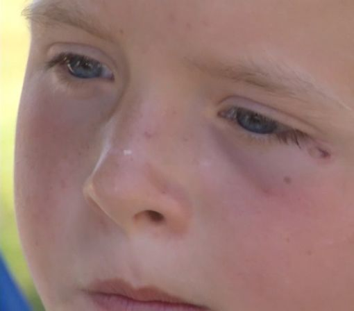 Boy Reopens Lemonade Stand After Being Shot With BB Gun