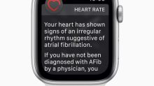 Apple Watch and Johnson & Johnson Team Up for Heart Study