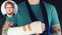 Ed Sheeran Cancels Shows as He Confirms Right Elbow and Left Wrist Broken in Bike Accident