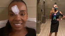"Thelma sofre acidente na Globo: ""Caí do palco e meti a cara no chão"""