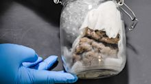 Custom officials find human brain in Toronto package destined for U.S.