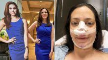 Mãe de três filhos gasta equivalente a R$95 mil para ficar parecida com Meghan Markle