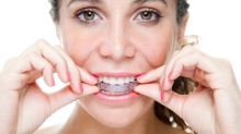 Five things you need to know before getting invisible braces