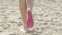 ¿Se puede prevenir la aparición de várices?