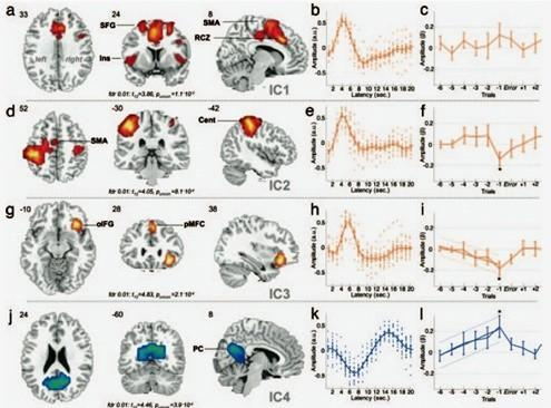 Fancy brain scans can detect when the mind wanders