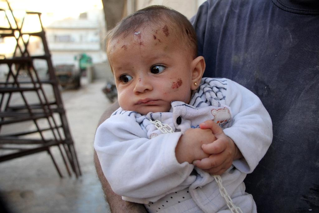 Yehya Maatouq holds his four-month-old daughter Wahida in Idlib, on October 1, 2016 (AFP Photo/Omar haj kadour)