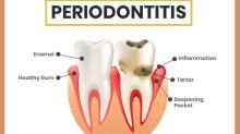 Periodontitis: Symptoms, Causes, Risk factors, Treatment And Prevention