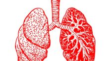 Lung Cancer: Early Signs, Causes, Symptoms, Diagnosis And Treatment