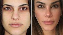 El nuevo rostro de Carla Barber ('Supervivientes') tras sus retoques estéticos