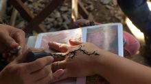 Garotinha sofre queimaduras na pele ao fazer tatuagem de henna