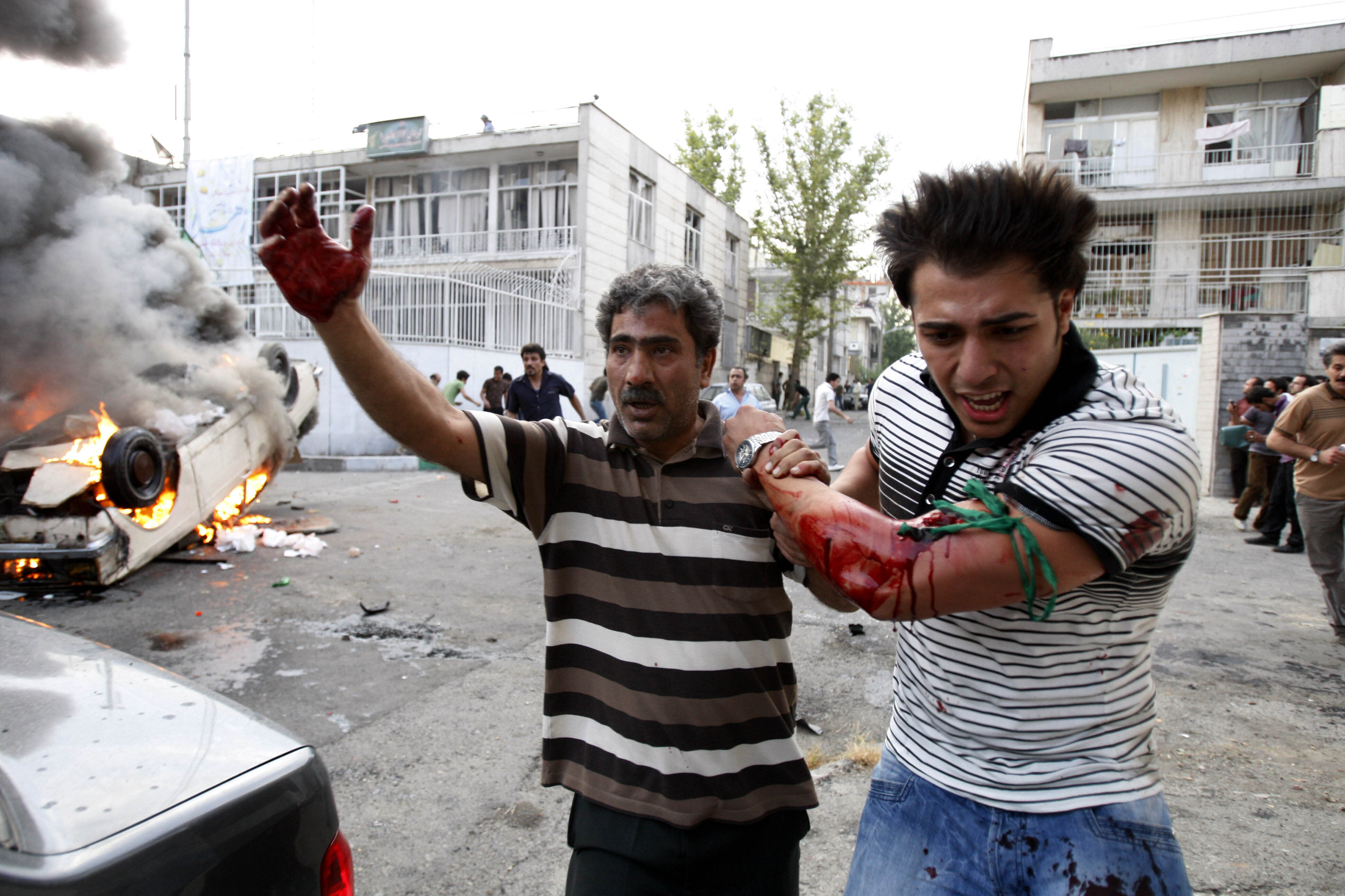 FILE - In this June 15, 2009 file photo, a protester allegedly injured by gunfire from a pro-government militia is helped by another protester near a rally supporting leading opposition presidential candidate Mir Hossein Mousavi in Tehran, Iran. The demonstrations that erupted after Iran admitted to accidentally shooting down a Ukrainian jetliner early Wednesday, Jan. 8, 2020, during a tense standoff with the United States, are the latest of several waves of protest going back to the 1979 Islamic Revolution — all of which have been violently suppressed. (AP photo/Vahid Salemi, File)