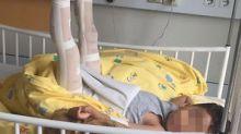 Mutter erhebt schwere Vorwürfe: Schlimmer Unfall bei Ausflug – Kita rief keinen Arzt