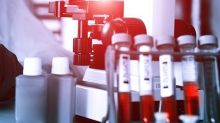 Does Market Volatility Impact e-Therapeutics plc's (LON:ETX) Share Price?