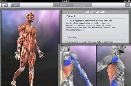 Muscle Trigger Points app helps you locate sources of pain