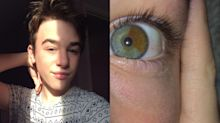 Teen whose irises are different colors calls heterochromia his 'best feature'