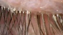 Woman's itchy eyes caused by 100 parasites in her lashes