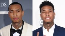 Tyga has the hairline everyone wants, according to his hair surgeon