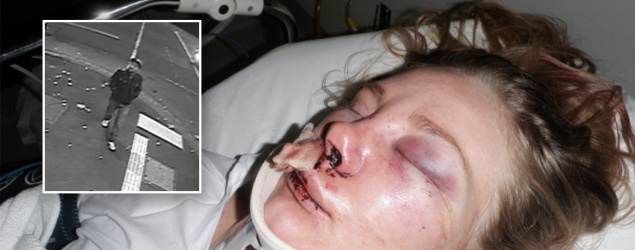 Victim's graphic images released with $500,000 reward to catch offender