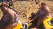 Teen Faced her 'Biggest Fear' and Wore a Swimsuit to the Beach