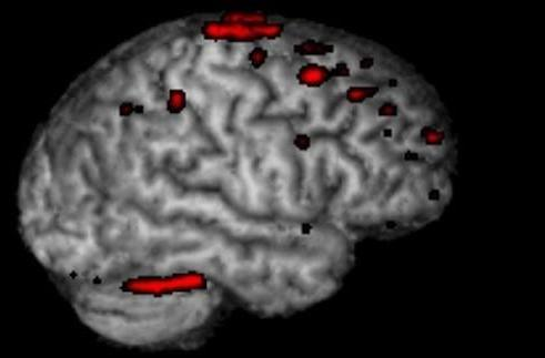 This is your brain. This is your brain on video games