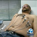Healthy man nearly needs heart transplant after getting flu