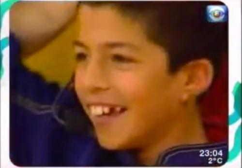 Suarez still hasn't quite grown into those teeth