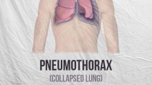 Pneumothorax (Collapsed Lung): Types, Causes, Symptoms, Risk Factors And Treatments