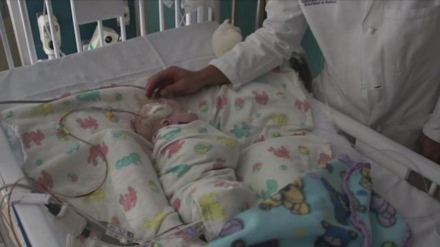 `Surgical Superglue` Saves Baby`s Life