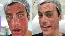 "Carlos Casagrande mostra antes e depois de procedimento estético: ""Cenas fortes"""