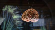 'Cérebros' artificiais precisam dormir como humanos, diz estudo