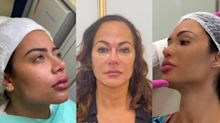 Preenchimento labial, lipoaspiração: os procedimentos estéticos das celebridades na quarentena