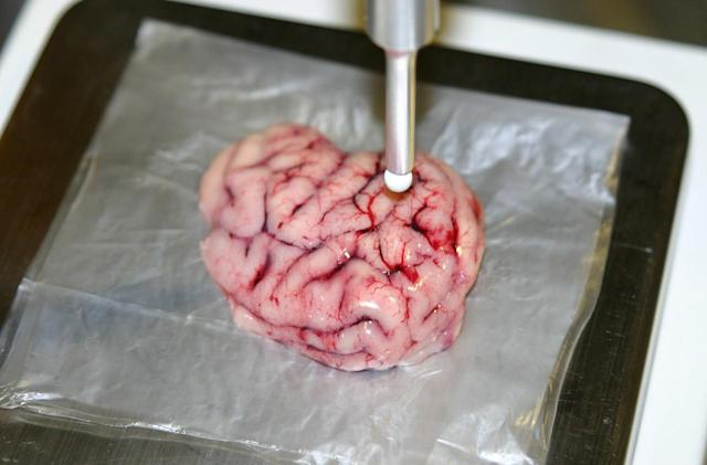 High-tech scalpel makes brain surgery less risky