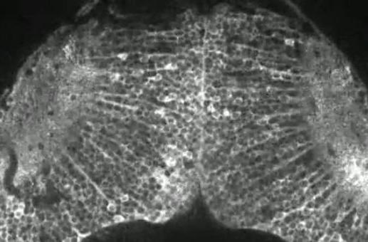 Visualized: a fish brain lights up while on the prowl (video)