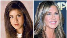 El antes y el después de 15 famosos que se operaron de la nariz