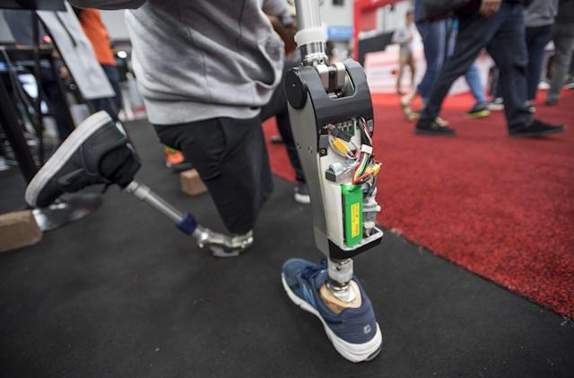 AI-tuned robotic knee helps amputees walk within minutes