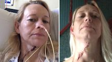 Mum's persistent ulcer turned out to be a form of tongue cancer