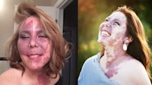 Woman with facial birthmark can teach us all a thing or two about self-love