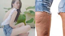 解決大脾橙皮紋!減肥可以減走橙皮紋嗎?3個有效去橙皮紋方法