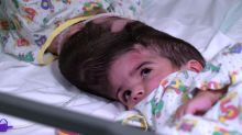 How did surgeons perform 55 hours of surgery to separate 'miracle' conjoined twins?