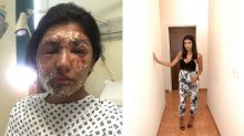 Student suffers 'life changing' injuries after acid attack on her 21st birthday