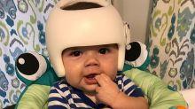 Bebé tiene que usar un casco por plagiocefalia y su familia decide hacer lo mismo
