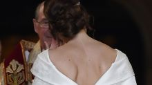 Princess Eugenie asked that her wedding dress be cut low in the back so she could show off surgery scars
