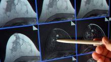 Brustkrebs: Kassen zahlen künftig für Biomarker-Test